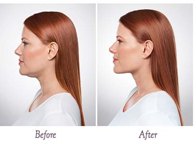 kybella-before-and-after-sml