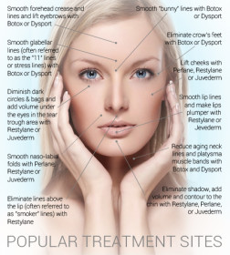 Injectable Diagram: Liquid Facelift