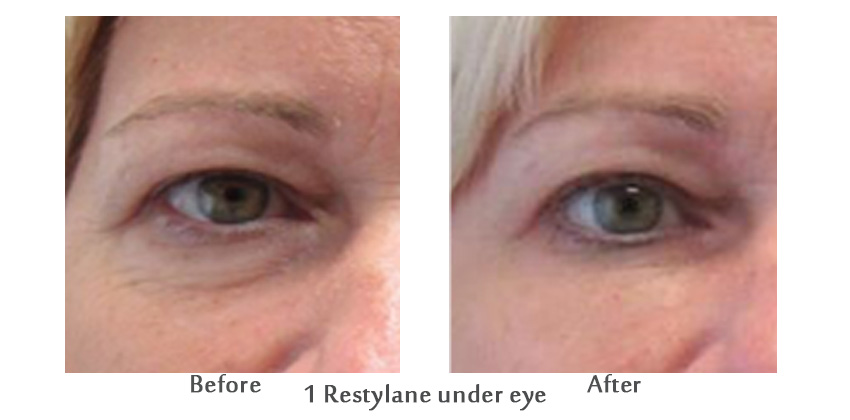 under eye filler anushka spa anti aging med spa palm beach