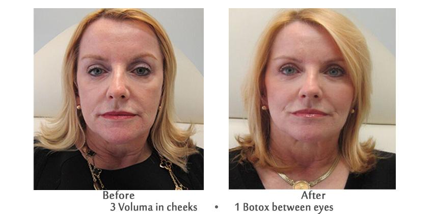 Anitaging Botox Anushka Spa